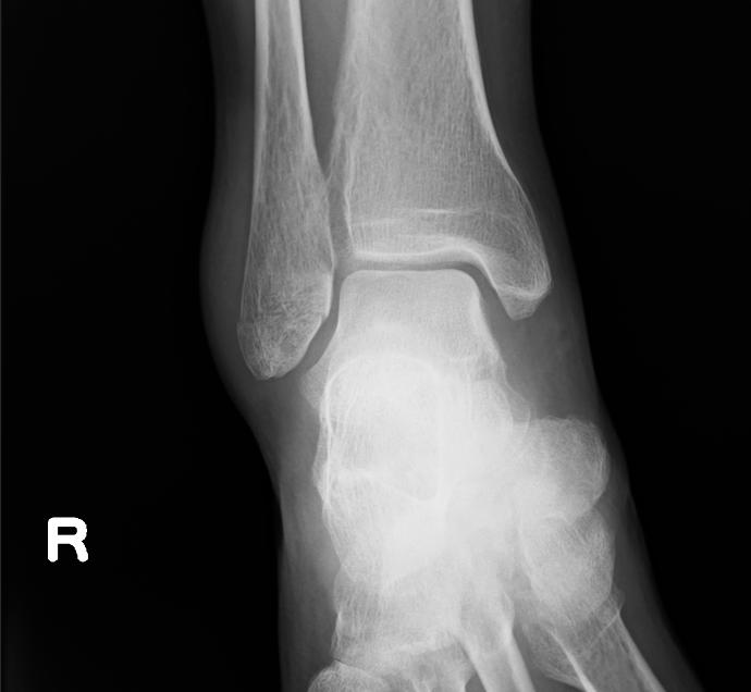 レントゲン(骨折部位)